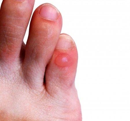 doigt de pied qui gratte