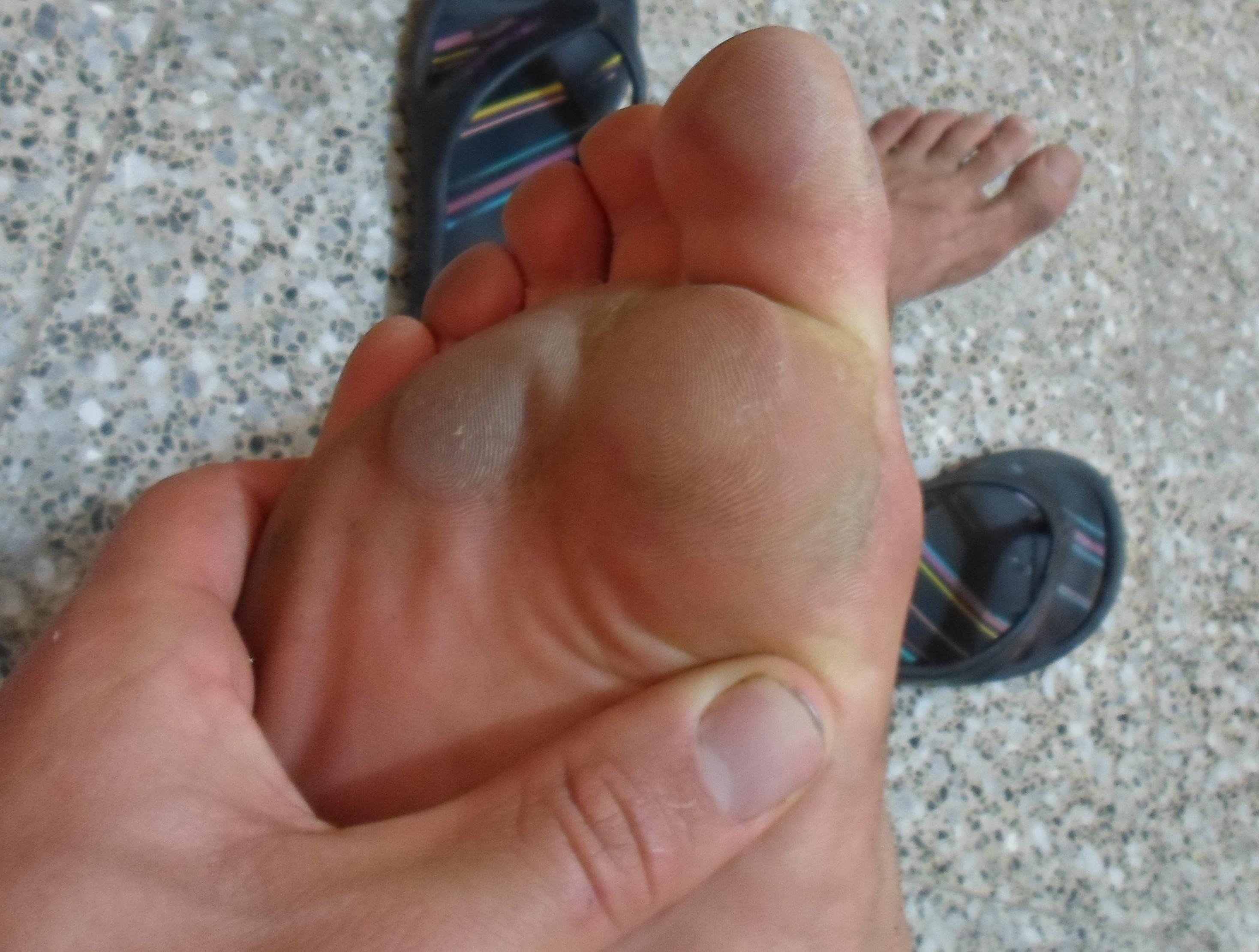 cloque sous le pied